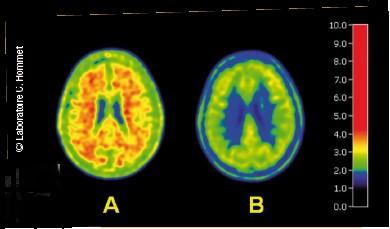 Alzheimer - Exemple d'image obtenue par scintigraphie chez un sujet avec déclin cognitif léger - laboratoire c. hommet