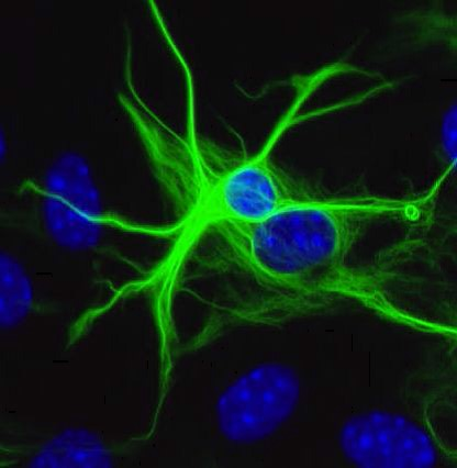 Alzheimer - Images d'astrocytes en épifluorescence
