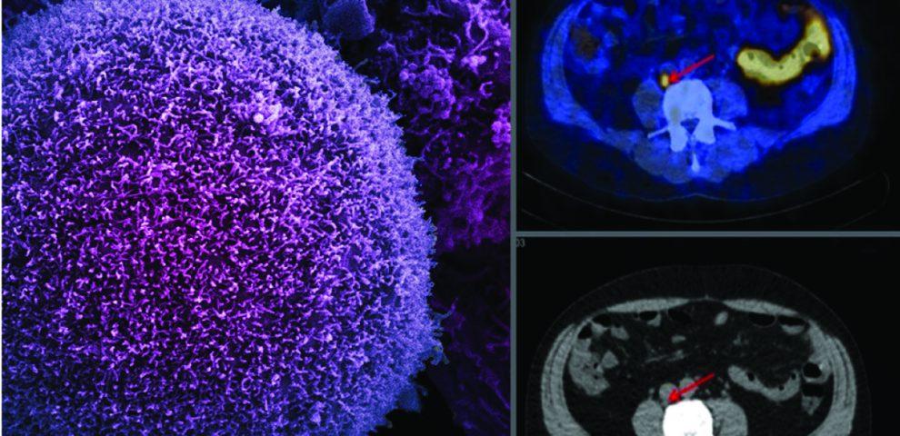 Cancer de la prostate : une nouvelle solution pour anticiper la récidive